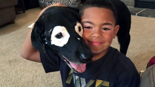 Boy with Vitiligo Meets His Dog Hero with Same Condition